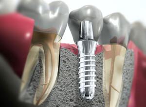 implantologia1[1]